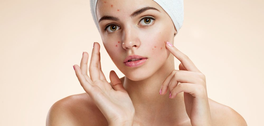 acne treatment changes pregnancy
