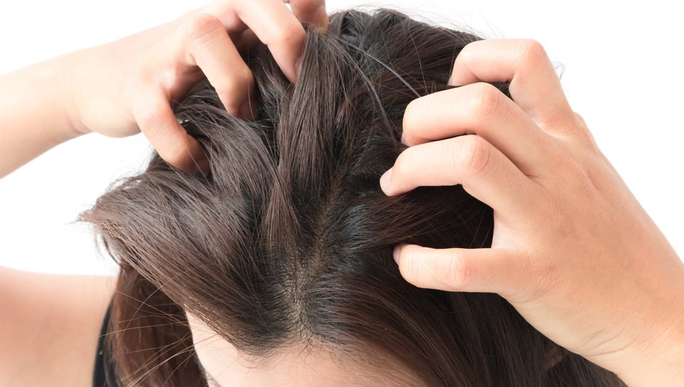 skin rashes itchy scalp